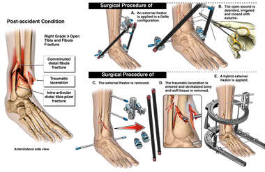Right Ankle Fractures with External Fixation and Revision