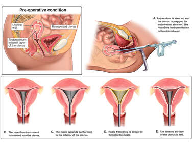 Endometrial Ablation