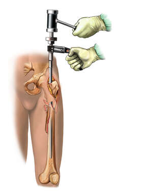 Nailing the Femur - anterior view
