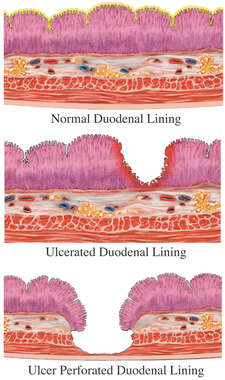 Ulcer Perforated Duodenal Lining