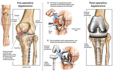 Development of Post-traumatic Arthritis with Total Replacement of the Left Knee