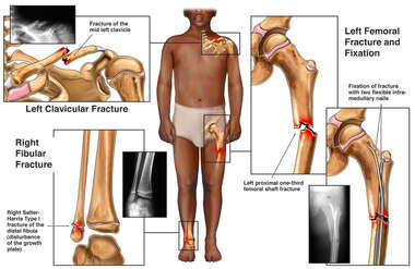 Black Male with Fractures to the Left Collar Bone, Ankle, and Femur with Surgical Fixation of the Femur