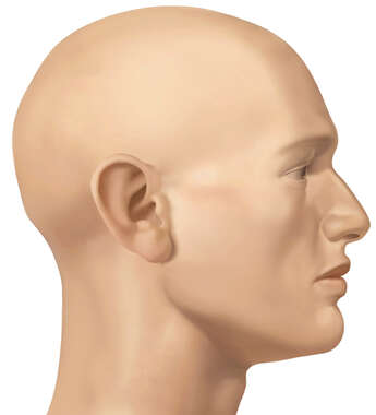 Lateral Face, Male, No Hair