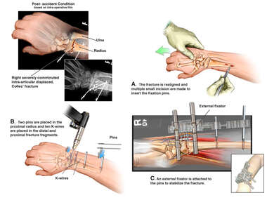 Wrist Fracture with Surgical Repair