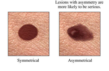 Skin Cancer Sign: Asymmetry in Mole