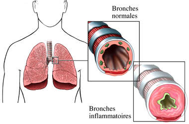 Asthme - Bronches inflammatoires