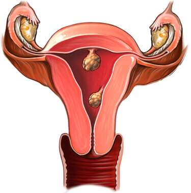 Female Reproductive Tract with Tumor: Anterior View