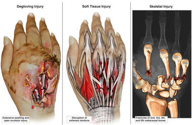 Crush Injuries of Right Hand