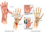 Right Hand Fractures with Surgical Repairs