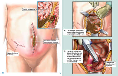 Complications and Surgical Repairs Following Abdominal Surgery
