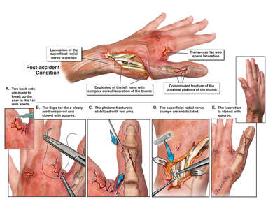 Traumatic Left Hand Injuries with Surgical Repairs