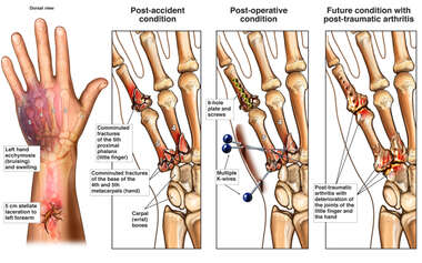 Progression of Left Hand Injuries