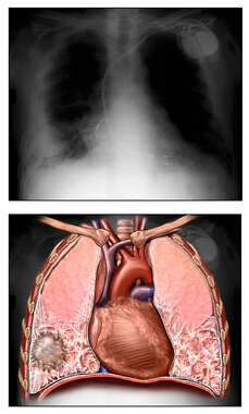 Asbestosis of the Lung