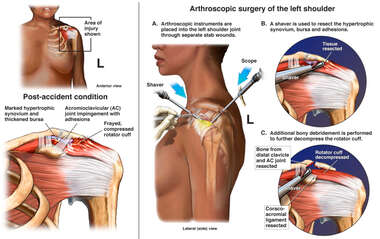 Shoulder Surgery with Initial Arthroscopic Debridement