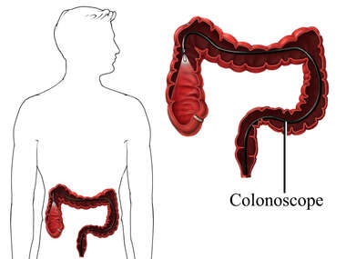 Colorectal Cancer Examination - Colonoscopy
