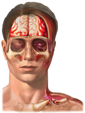 Closed Head Injury with Fractures