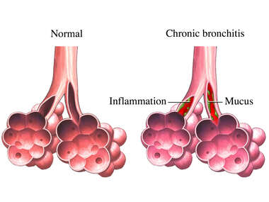 Chronic Bronchitis