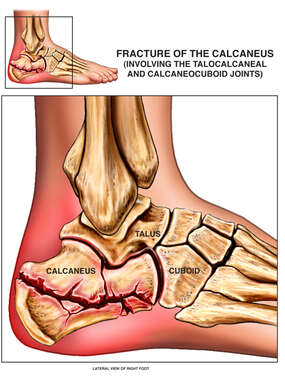 Post-accident Right Foot Calcaneal Fracture