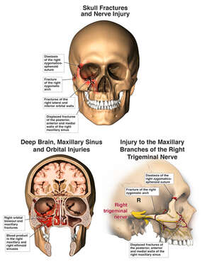 Skull, Trigeminal Nerve and Brain Injuries