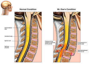 Spondylolisthesis of C6 on C7