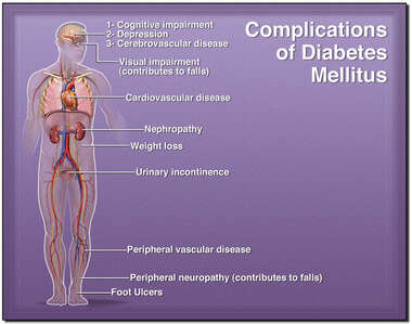 Complications of Diabetes