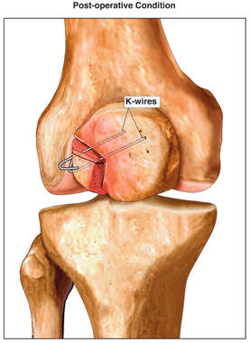 Patellar Fracture Fixation