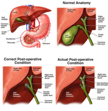 Surgical Removal of the Gall Bladder with Resulting Common Bile Duct Injury