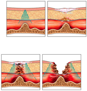 Development of Pressure Sores (Bedsores or Decubitus Ulcers)