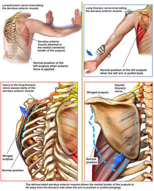Traction Injury to the Long Thoracic Nerve
