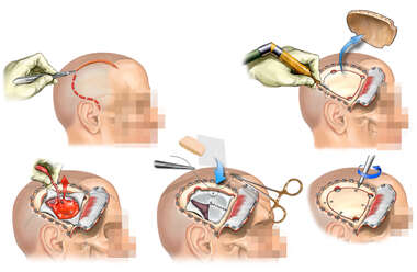 Right Frontoparietal Craniotomy with Evacuation of Subdural