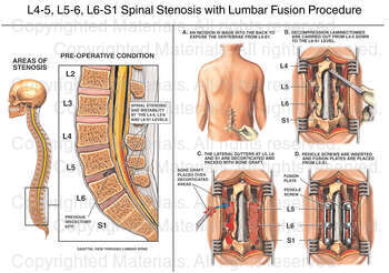 L4-5, L5-6, L6-S1 Spinal Stenosis with Lumbar Fusion Procedure