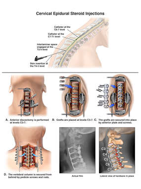 Cervical Spine Injuries with Surgical Fusion