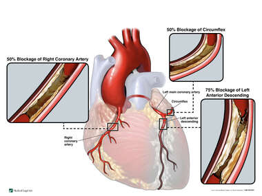 Coronary Artery Disease with Resulting Ischemic Cardiomyopathy