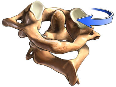 C1, C2 Vertebrae with Left Rotation, Posterior View