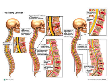 Progression of Spinal Injuries