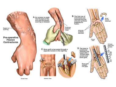 Flexion Contractions of the Left Wrist with Fusion Surgery