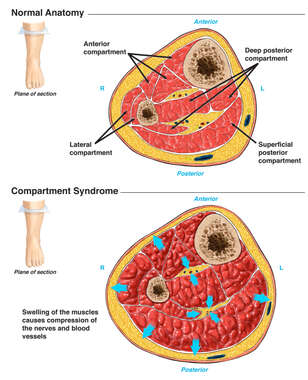 Compartment Syndrome of the Lower Extremity