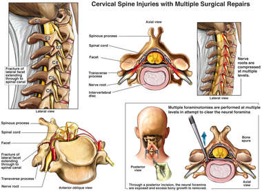 Cervical Spine Injuries with Multiple Surgical Repairs