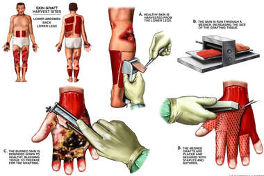 Initial Debridement and Skin Grafting of Burn Injuries