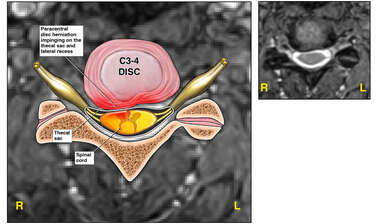 C3-4 Disc Herniation