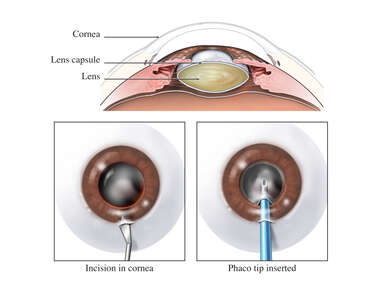 Artificial Lens Replacement