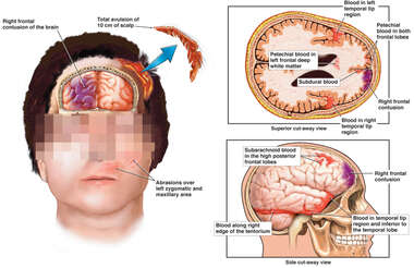 Head and Brain Injuries: Contusions and Bleeding (Hemorrhage)