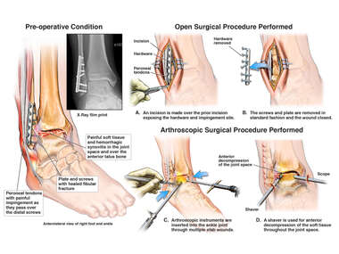 Painful Right Ankle with Hardware removal and Anterior Decompression.