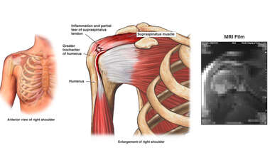 Tear of the Supraspinatus Tendon