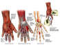Post-accident Hand Injuries
