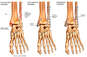 Left Ankle Fracture with Surgical Fixation and Subsequent Arthritis