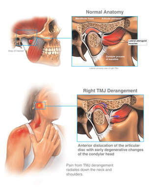 Temporomandibular Joint (TMJ) Derangement