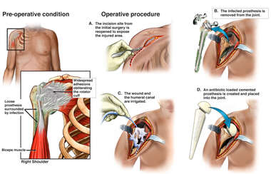 Post-operative Right Shoulder Infection with Additional Surgical Repairs