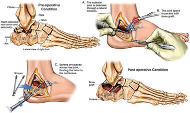 Right Calcaneal Deformity and Subtalar Arthritis with Surgical Repair