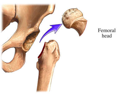 THR: Femoral Head Removal
